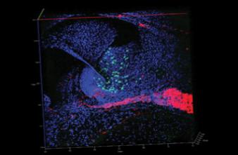 Un implant cochléaire amélioré permet de retrouver une ouïe fine