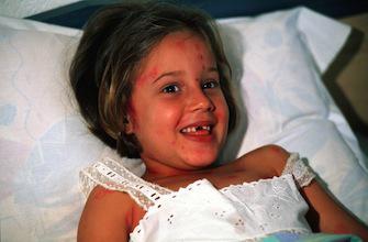 Alerte à la varicelle dans 12 régions