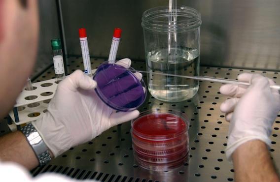 L'INSERM recueille vos bactéries intestinales