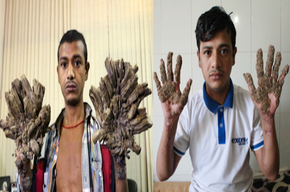 Abul Bajandar : l'homme arbre va sortir de l'hôpital