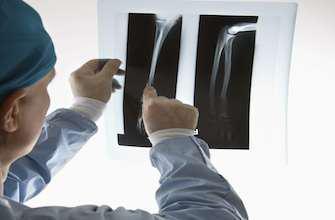 Réparer des fractures avec des vis en soie