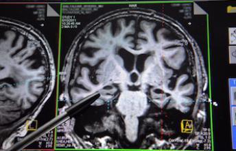 Mort subite de nourrisson : découverte d'une anomalie cérébrale