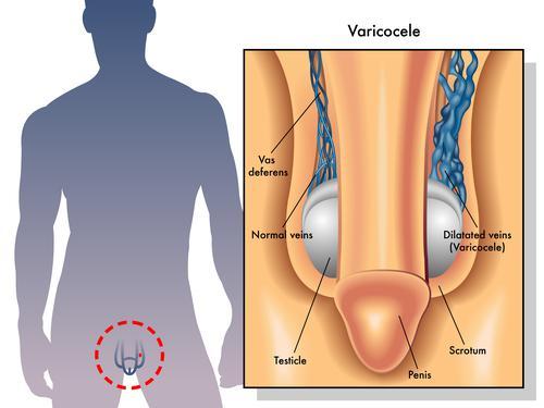 Cancer du testicule : pourquoi les hommes consultent avec retard