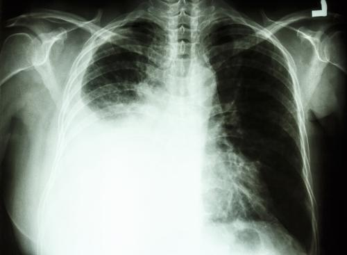 Cancer du poumon : le dépistage inutile chez les fumeurs