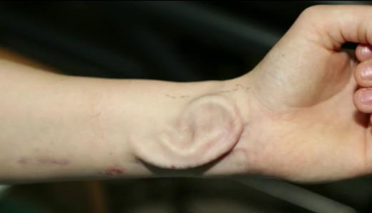 Une greffe d'oreille cultivée sur l'avant-bras d'une patiente