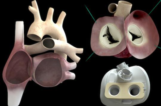 Coeur artificiel : décès du troisième patient implanté