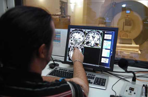 Alzheimer : des chercheurs français découvrent une nouvelle protéine