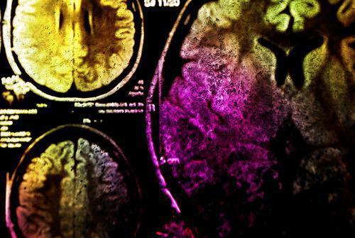 Anévrisme cérébral : des chercheurs découvrent un gène responsable