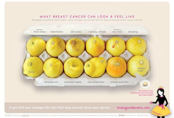 Cancer du sein : 12 citrons pour aider au dépistage