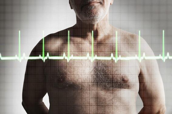 Crise cardiaque : une faible dose de bêtabloquants est plus efficace