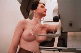 Cancer du sein : une avancée \