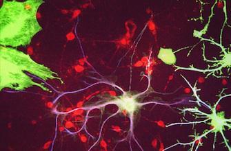 Vieillissement : les neurones ne meurent pas