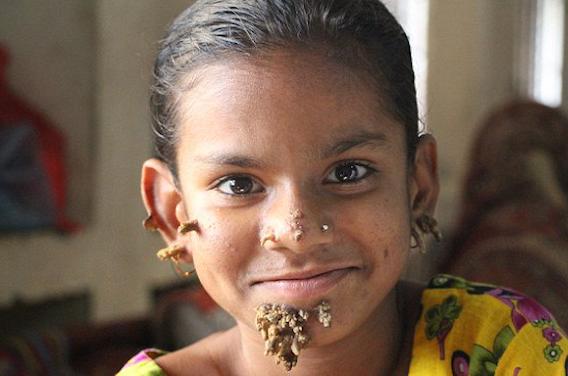Bangladesh : Shahana serait le premier cas de \