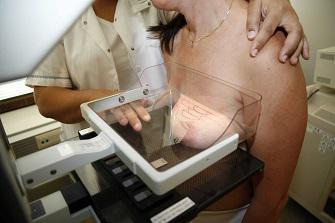 Cancer du sein : les femmes blanches sont plus à risque