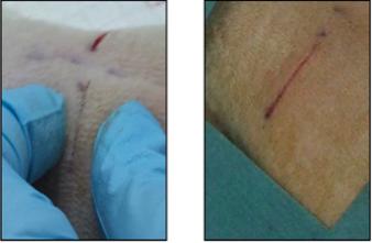 Des nanoparticules pour coller des plaies et réparer des organes