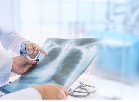Une association signale des cas de migration d'implants contraceptifs dans les poumons