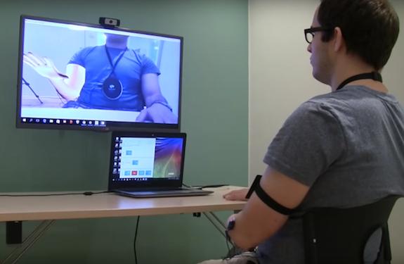 Amputation : les douleurs fantômes soulagées par la réalité virtuelle