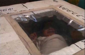 Un bébé prématuré survit dans une boite isotherme