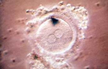 Infertilité : premiers essais de création d'ovules et de sperme artificiels
