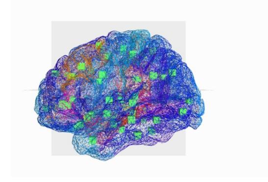 Epilepsie :  un cerveau \