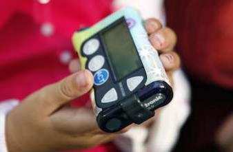 Diabète : le pancréas artificiel soulage le quotidien des patients