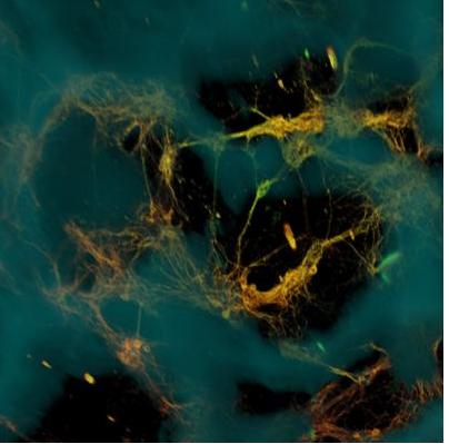 Des chercheurs ont créé un tissu cérébral vivant en 3D