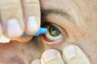 Conjonctivite : l'épidémie s'accélère à la Réunion