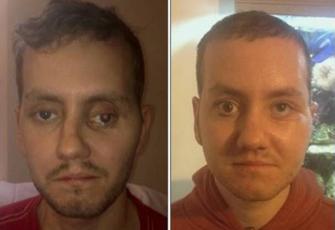 Première reconstruction du visage avec une imprimante 3D