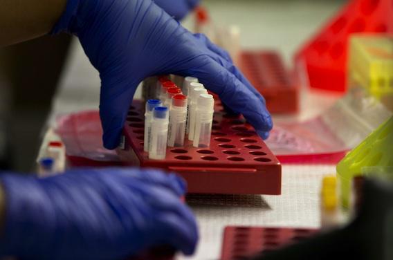 Herpès : de nouvelles pistes pour un vaccin et un test universel
