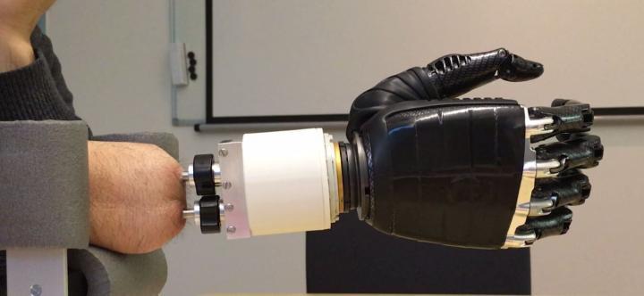 Amputation : une prothèse restaure les mouvements complexes du poignet