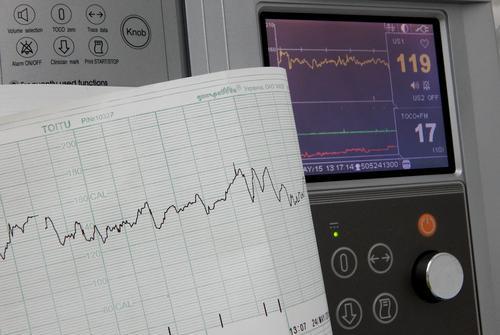 Insuffisance cardiaque : le risque augmente avec le poids à l'adolescence