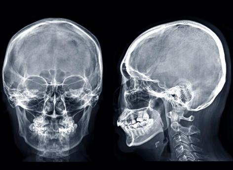 Un nouvel organe découvert dans le crâne humain
