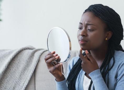 Acné chez les adolescents : les filles et les minorités ethniques davantage exposées à la détresse psychologique - Pourquoi Docteur ?
