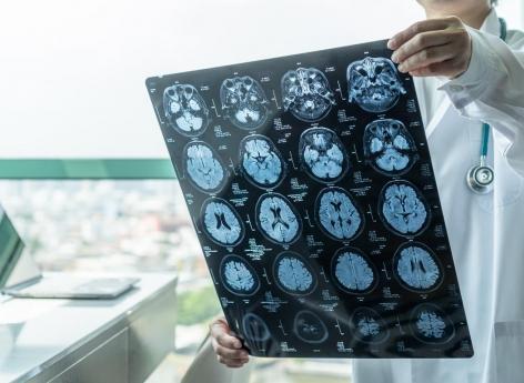 Tumeurs cérébrales : des biopsies 3D pour mieux les étudier - Pourquoi Docteur ?