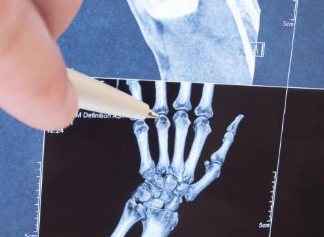 Polyarthrite, « orteil Covid » : l'imagerie confirme ces symptômes durables de la Covid-19 - Pourquoi Docteur ?
