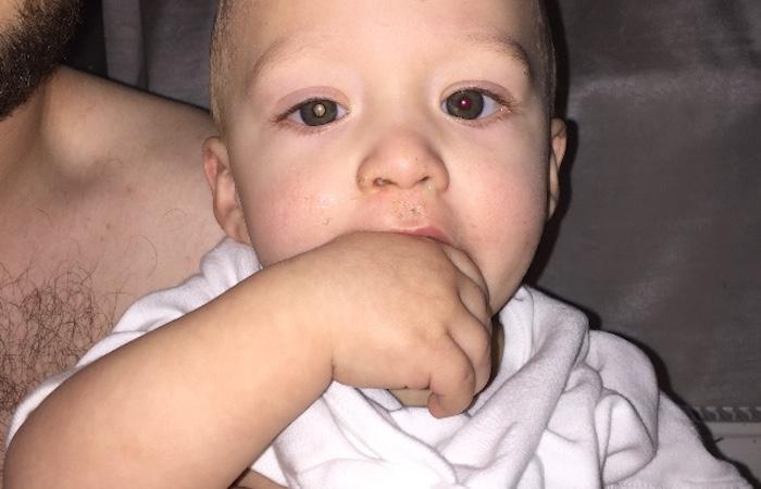Cancer de la rétine : une photo permet de le détecter sur un bébé