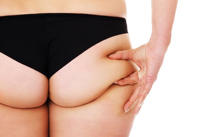 Risque cardiovasculaire : les kilos pris sur le bas du corps sont moins dangereux