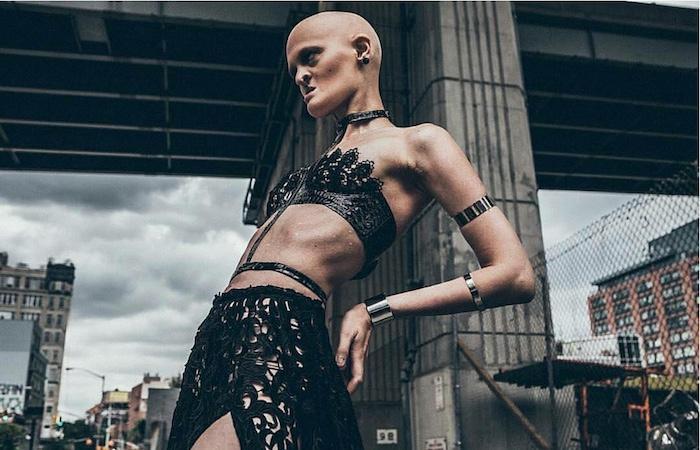 Melanie Gaydos : sa maladie génétique l'aide à devenir mannequin