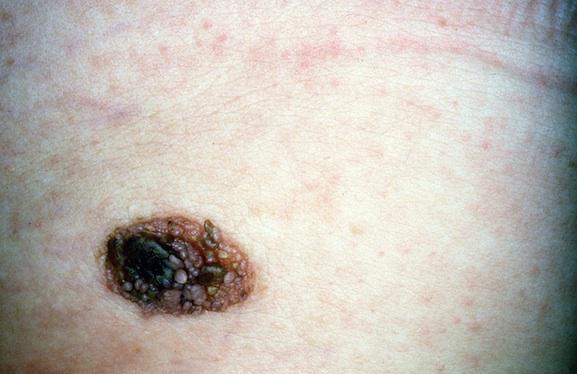 Le virus de l'herpès efficace contre le mélanome