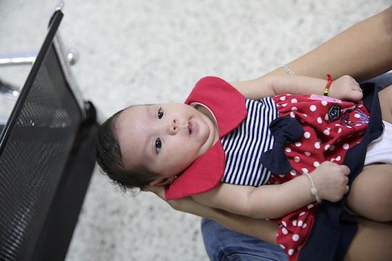 Zika : naissance du premier bébé microcéphale en Europe