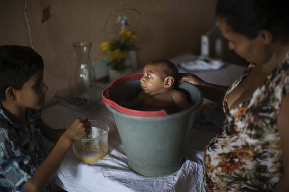 Virus Zika : 3 000 cas de microcéphalie au Brésil