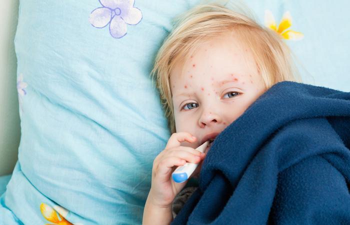 Rougeole : les Américains invités à se vacciner avant d'aller en Italie