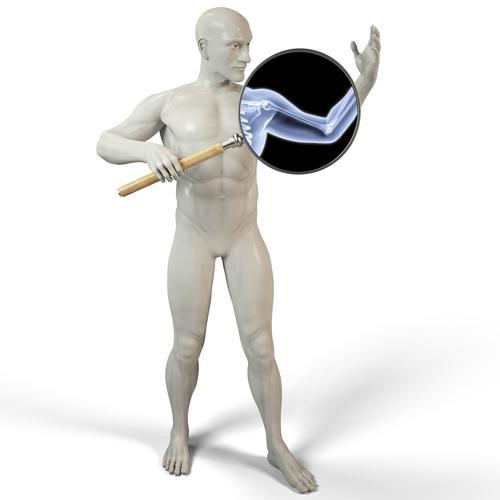 Maladie des os de verre : attention à l'erreur médicale !