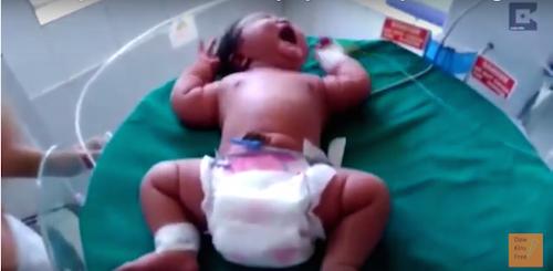 Record : naissance en Inde d'un bébé de 6,8 kg