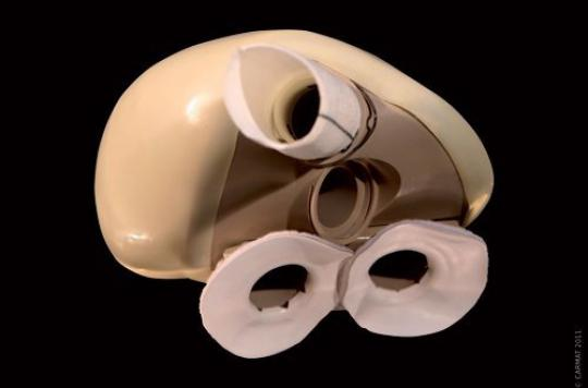 Coeur artificiel : une mauvaise manipulation des batteries à l'origine du décès du 5e patient