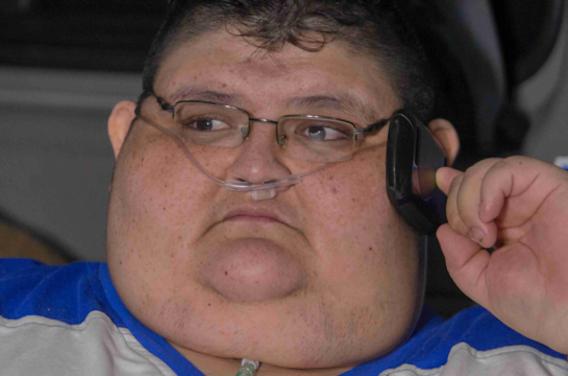 Juan Pedro Franco Salas : il pèse 500 kilos avant son opération