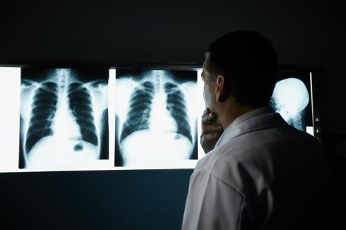 Fibrose pulmonaire idiopathique : une maladie rare mais grave