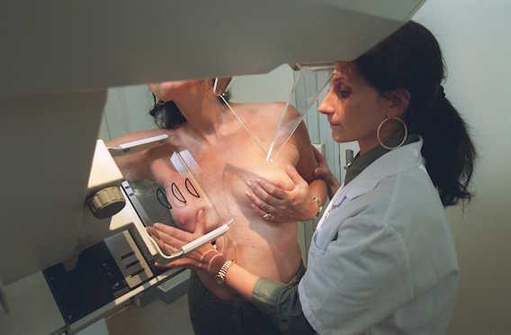 Cancer du sein : 15 000 patientes ont bénéficié de la \
