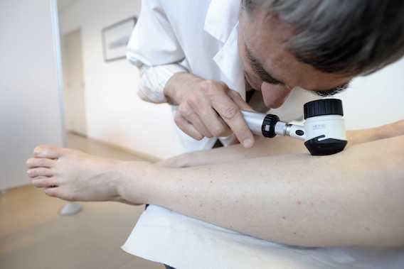 Mélanome avancé : des résultats positifs pour les patients