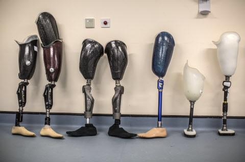 Une prothèse tactile qui estompe les douleurs du \